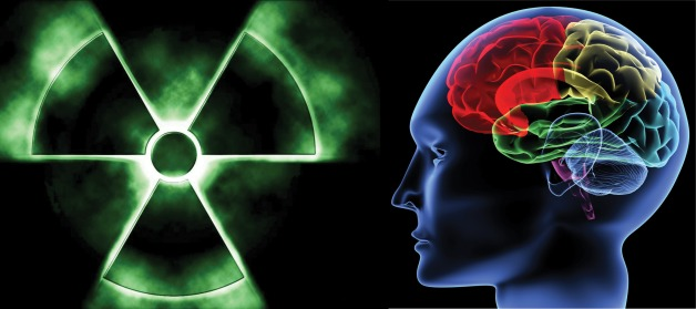 Neurotoxicants